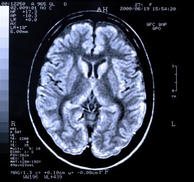 MRI image of brain